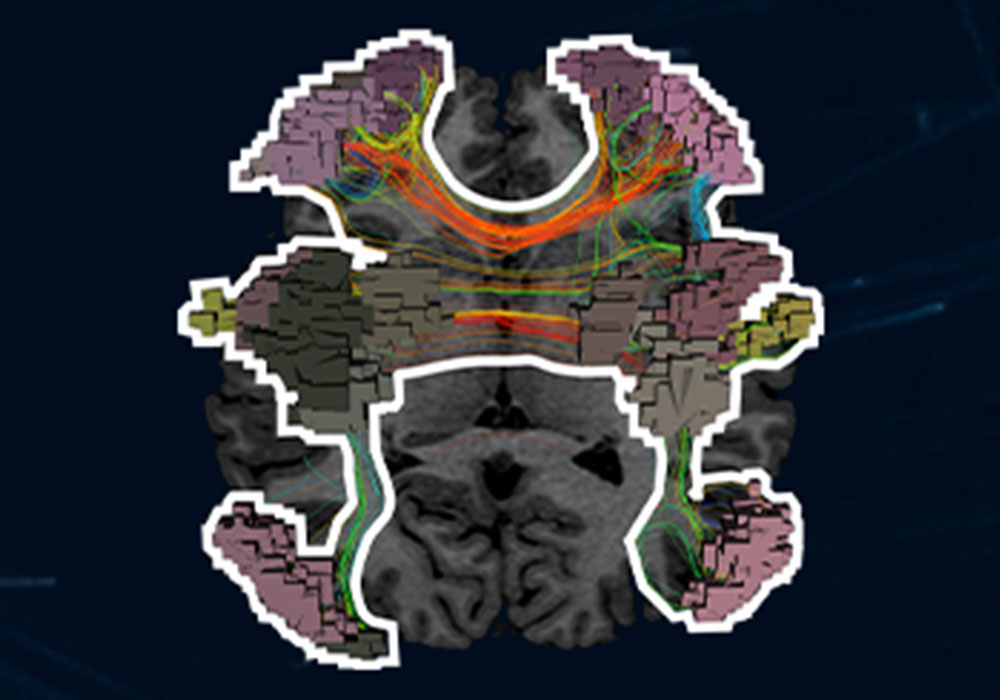 Brain Network Library